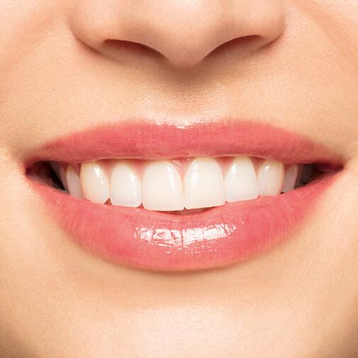 Embellisseur Lèvres
